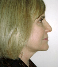 After-Slide for B & A